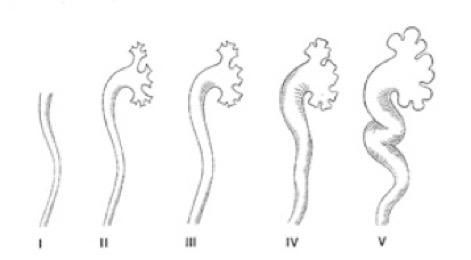 Reflux vésico-urétéral | VESSIE-URETERE | IMAGERIE PEDIATRIQUE